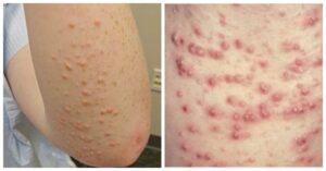 diabetes skin conditions rash