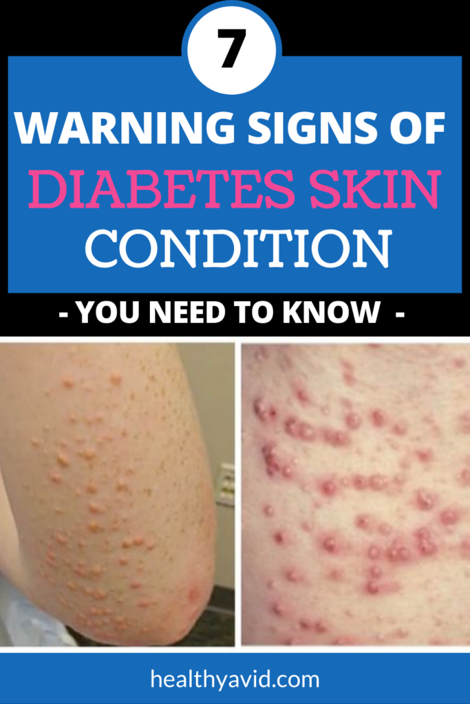signs of diabetes skin conditions