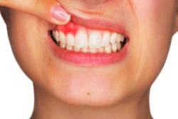 symptoms of diabetes inflamed gum (1)