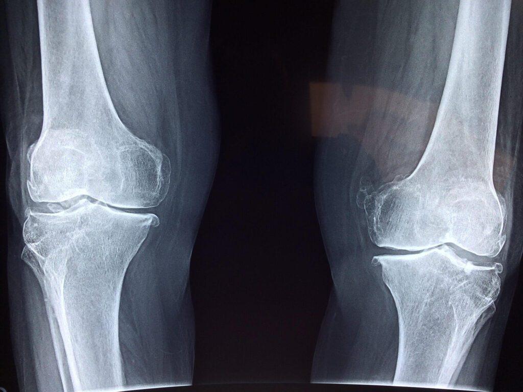 benefits of exercise bone